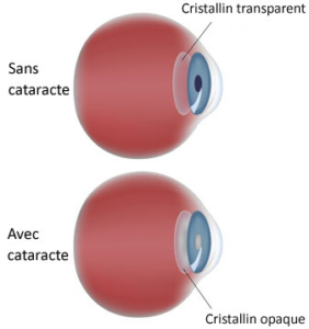 Cataracte